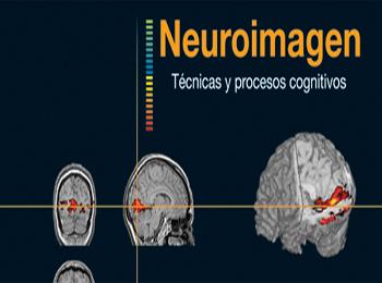Neuroimagen portada