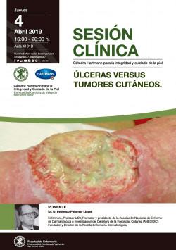 Úlceras versus tumores cutáneos