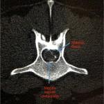 Diagnóstico y tratamiento de una hernia discal lumbar