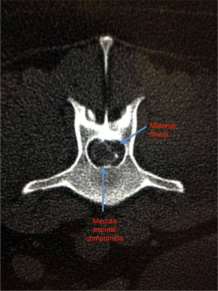 radiografia hernia discal lumbar