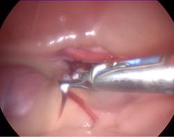 coagulación y corte de los vasos ováricos