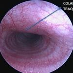 Elongación del paladar blando y colapso traqueal tipo II