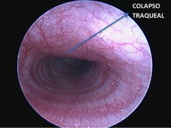 Inflamación a lo largo de toda la porción estudiada y colapso traqueal