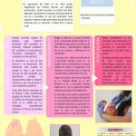 p82. Sedación intranasal. ¡Stop dolor!