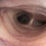 Colapso traqueal y eversión de sáculos laríngeos