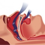 Síndrome de Apnea – Hipopnea del sueño